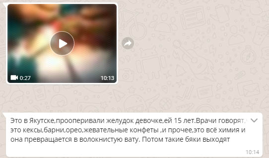 skrin Минздрав Якутии о вирусном видео: Из желудка пациента извлекают волосы