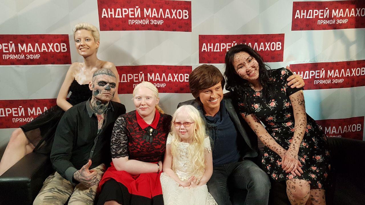 Ирине Павлуцкой после эфира у Малахова начали поступать предложения от модельных агентств