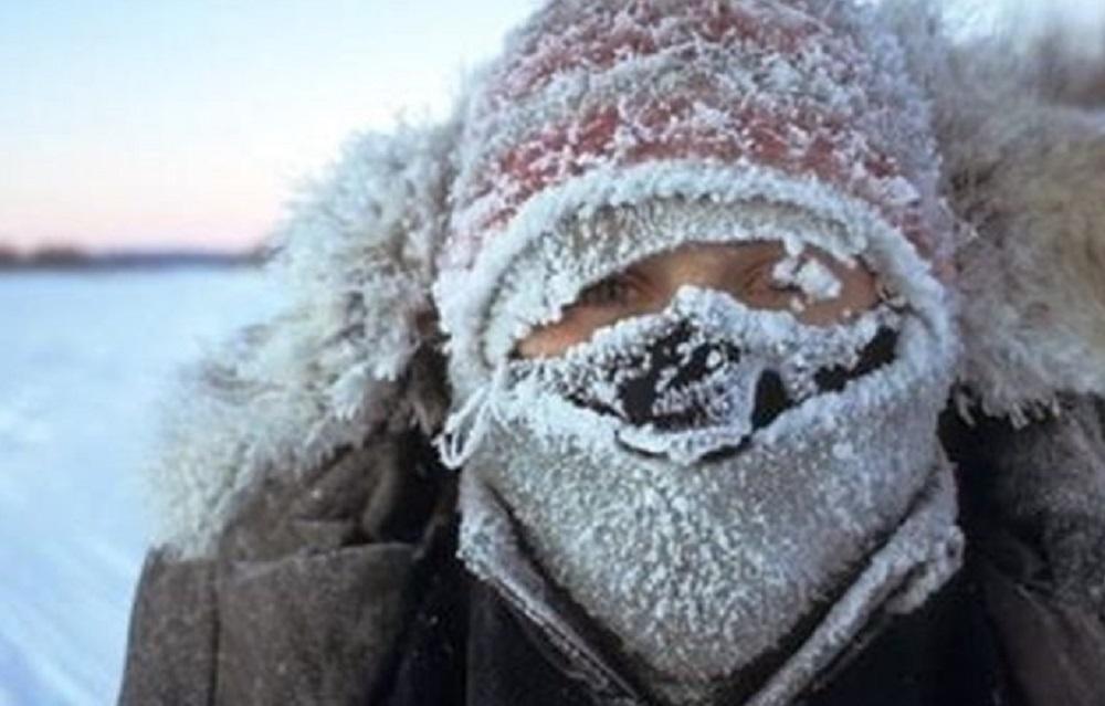 С начала года более 100 якутян обратились за медпомощью с обморожениями, в том числе 11 детей