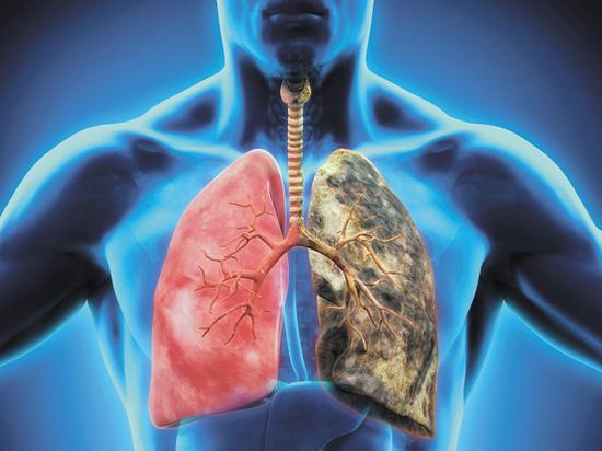 В Якутии началась кампания по профилактике рака лёгких