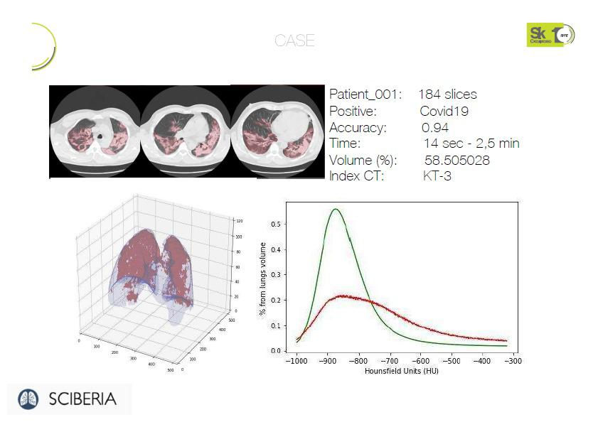 Расширяя границы, или Как программа компании SCIBERIA меняет рентгенологию